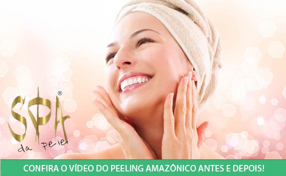 DE VOLTA E AINDA MELHOR!!! Efeito Rejuvenescedor imediato!!!  01 Peeling Ultrassônico + 01 Peeling Químico + 01 Peeling Amazônico + Laser Fluence.