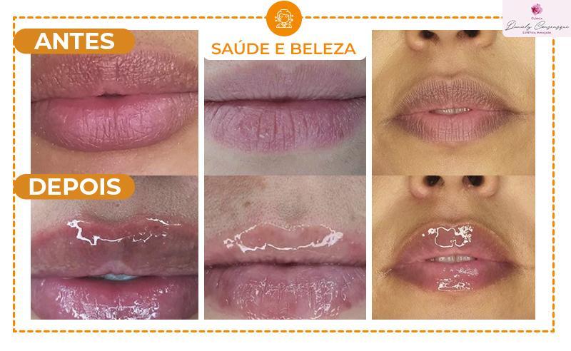 02 Sessões de Hidra Gloss Lips