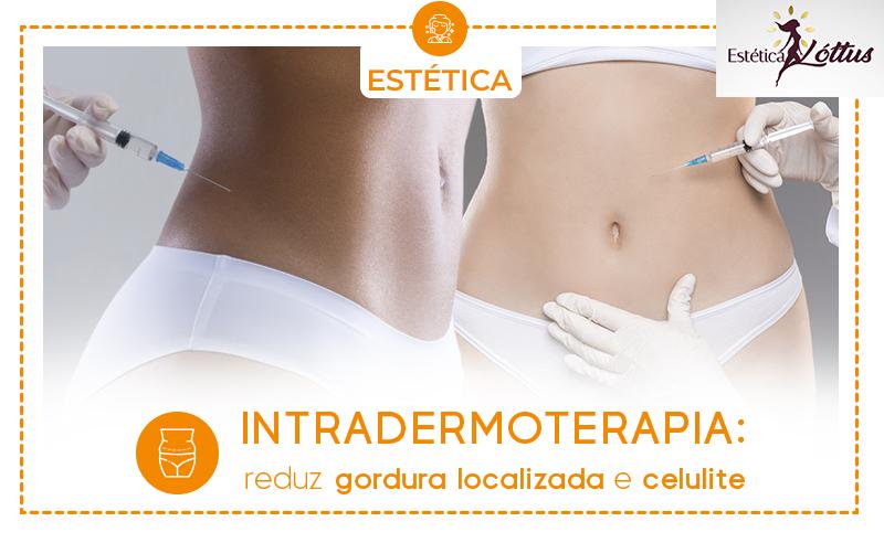 INTRADERMOTERAPIA:  reduz gordura localizada e celulite