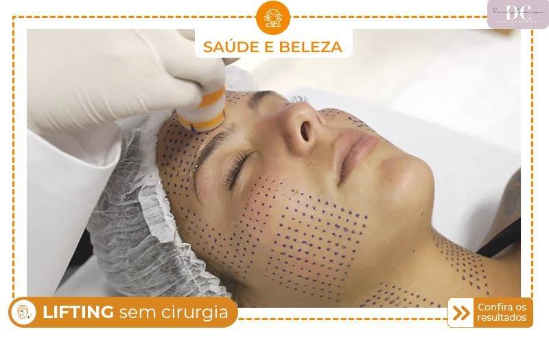 Linfting Facial sem Cirurgia