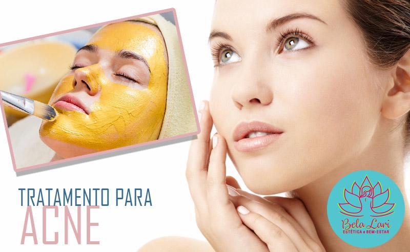 Facial Top para Acne